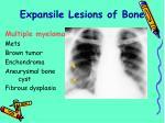 expansile lesions of bone27