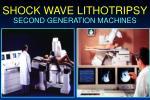 shock wave lithotripsy14