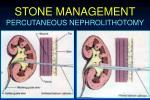 stone management28