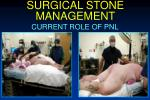 surgical stone management32