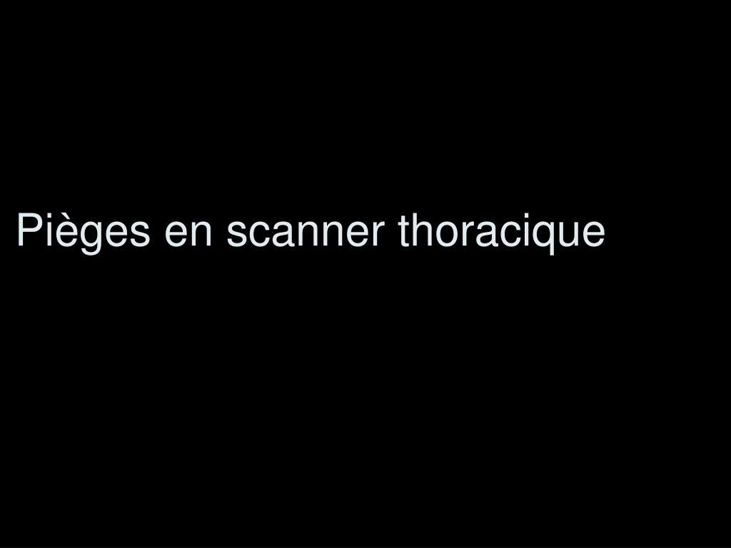 pi ges en scanner thoracique l.