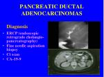 pancreatic ductal adenocarcinomas