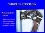 whipple specimen11