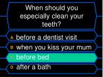 when should you especially clean your teeth1