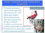 semi fowler s and fowler s position