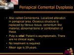 periapical cemental dysplasia