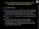 v les calcifications avec lesion s sous jacente s causes infectieuses37