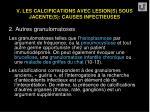 v les calcifications avec lesion s sous jacente s causes infectieuses38