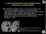v les calcifications avec lesion s sous jacente s causes rares59
