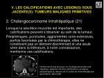 v les calcifications avec lesion s sous jacente s tumeurs malignes primitives45