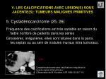 v les calcifications avec lesion s sous jacente s tumeurs malignes primitives48