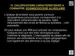 vi calcifications caracteristiques a connaitre echinococcose alveolaire62