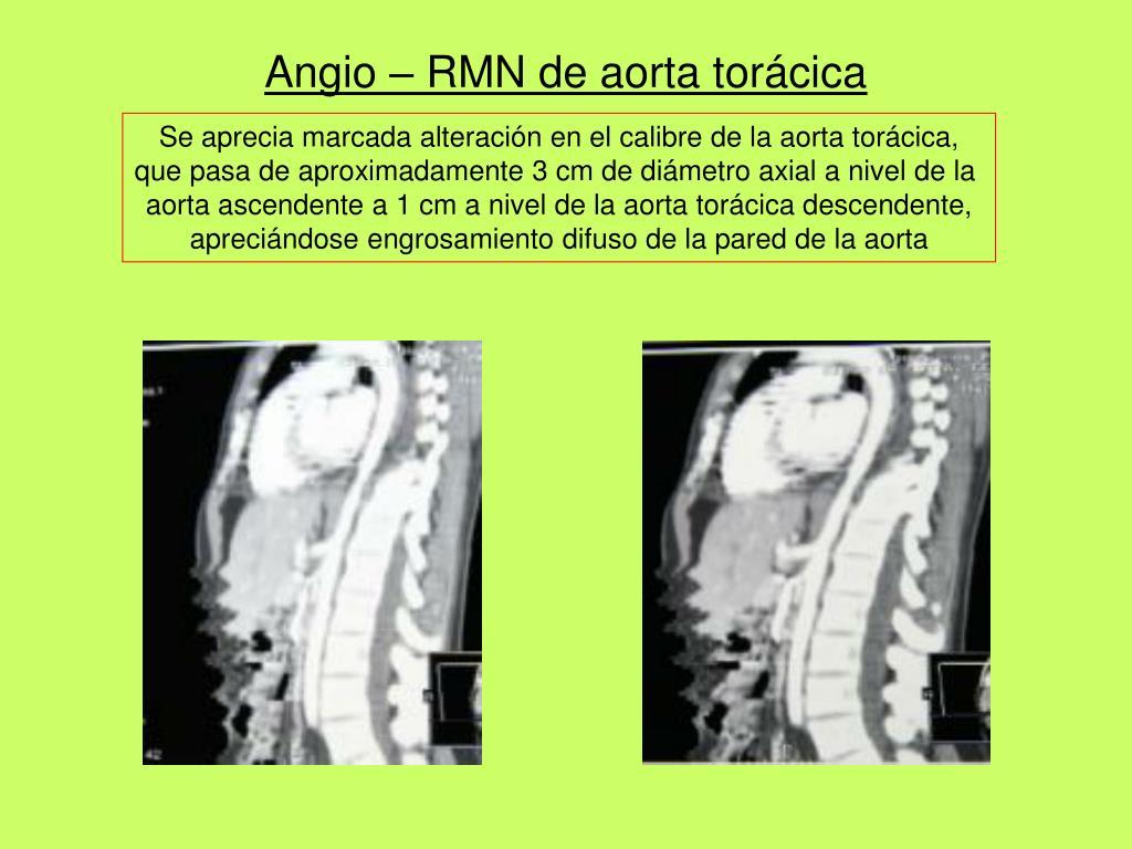 Angio – RMN de aorta torácica