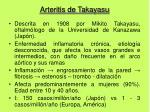 arteritis de takayasu