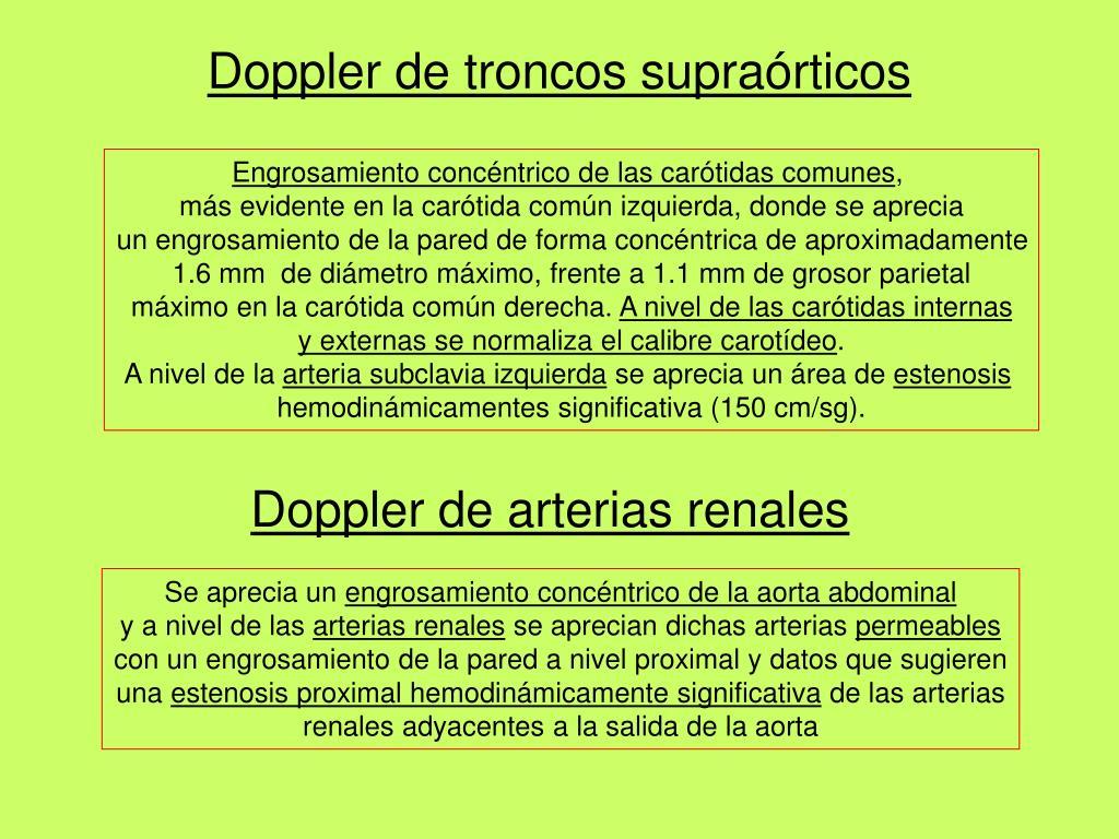 Doppler de troncos supraórticos