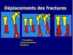 d placements des fractures