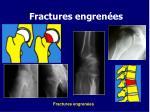fractures engren es