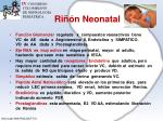 ri n neonatal4
