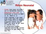 ri n neonatal6
