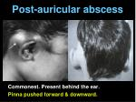 post auricular abscess