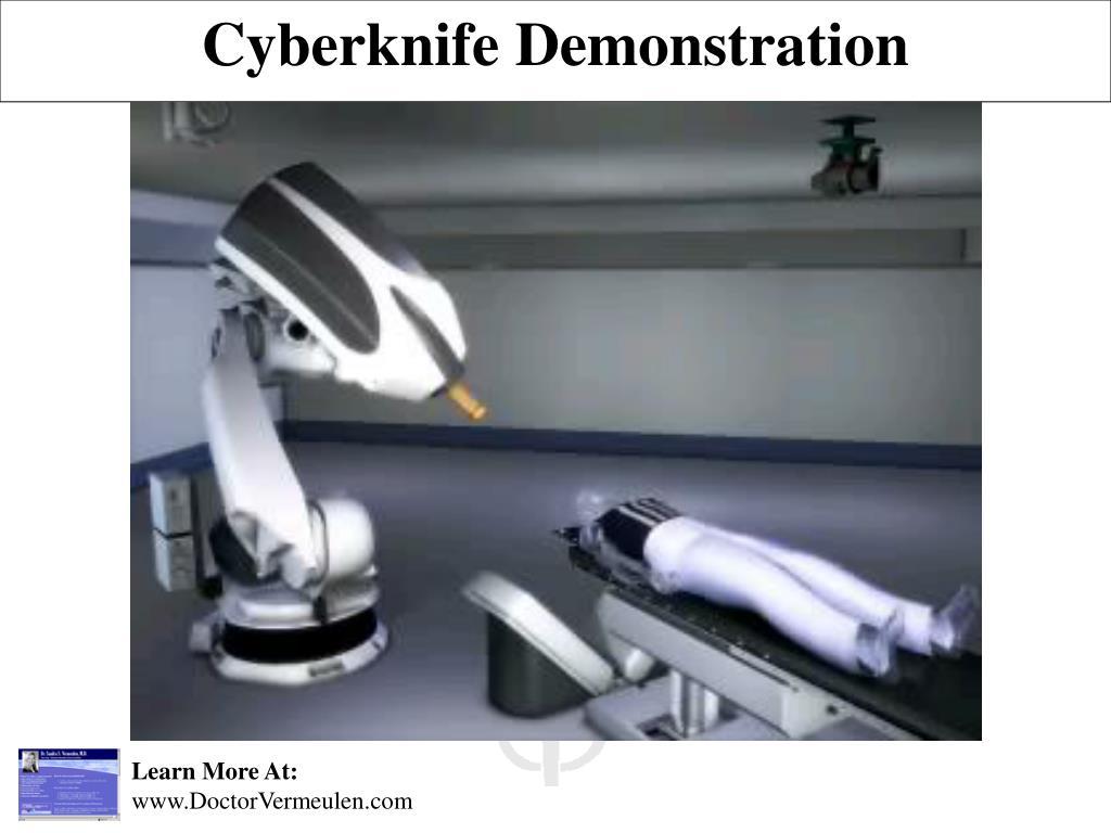 Cyberknife Demonstration