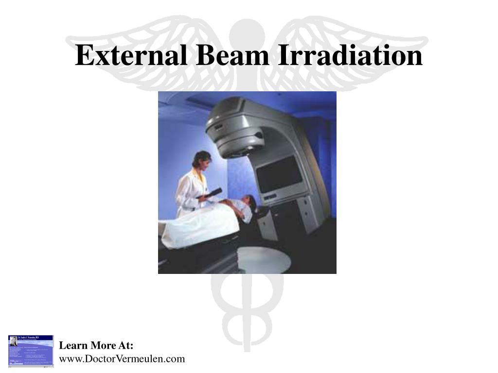 External Beam Irradiation