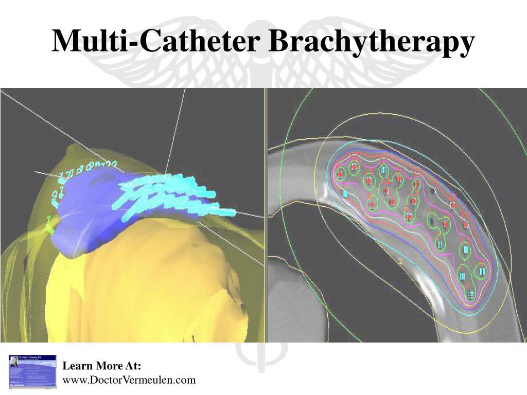 Multi-Catheter Brachytherapy