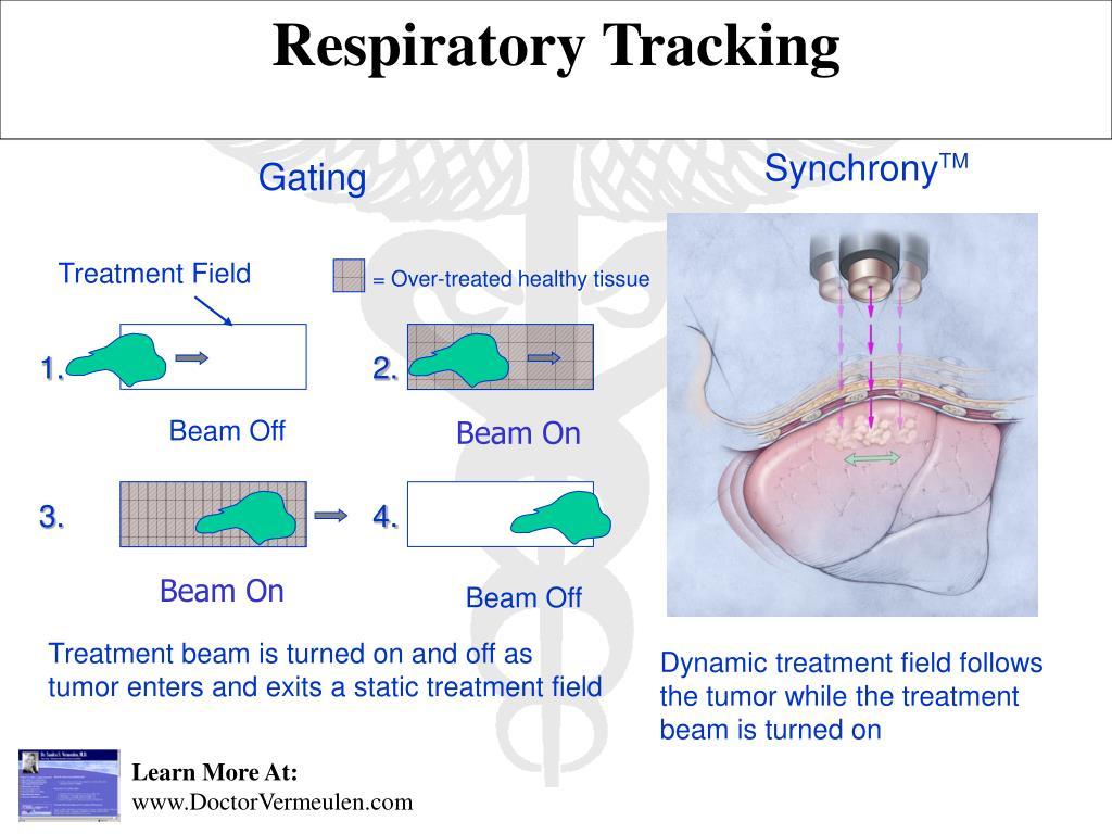 Respiratory Tracking