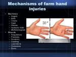 mechanisms of farm hand injuries19