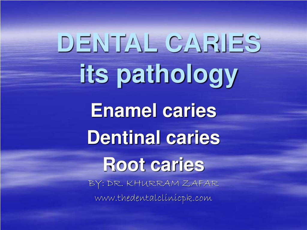 dental caries its pathology l.