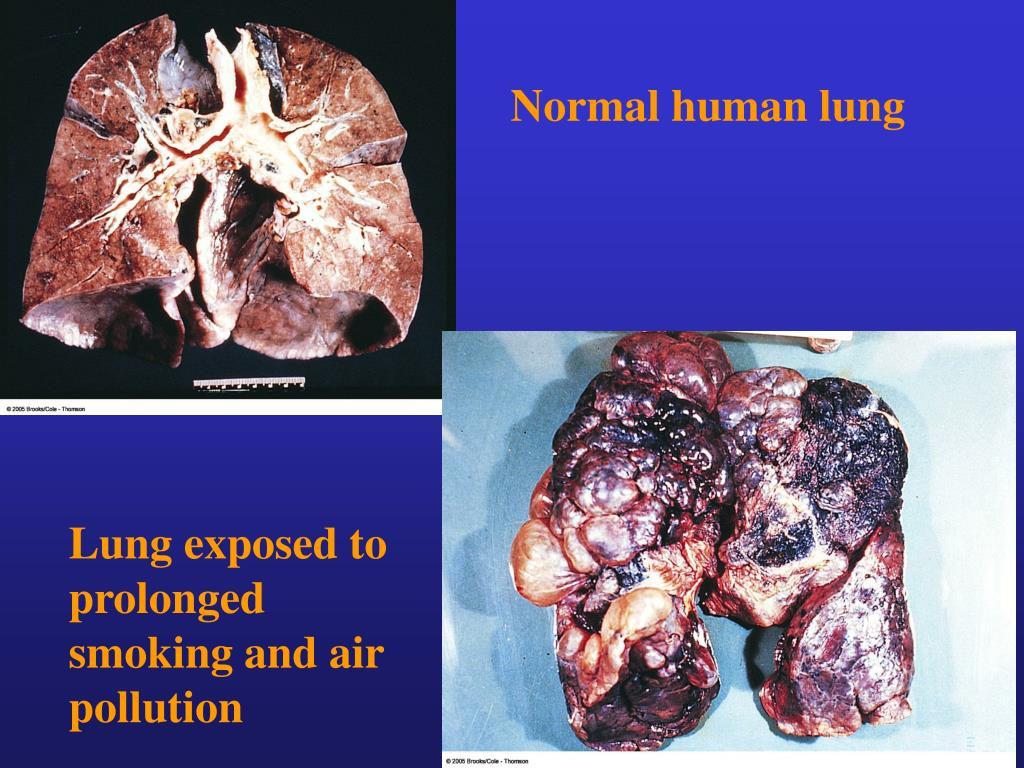 Normal human lung