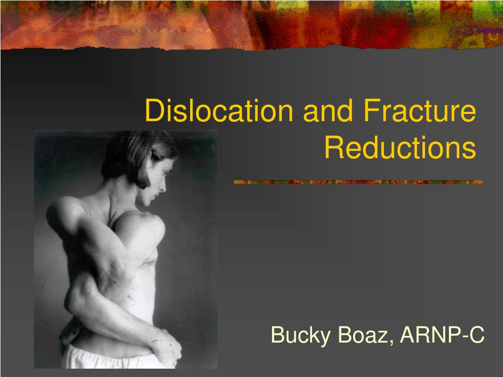 dislocation and fracture reductions l.