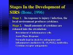stages in the development of sirs bone 1996