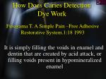 how does caries detection dye work41