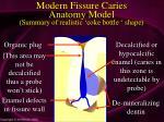 modern fissure caries anatomy model summary of realistic coke bottle shape