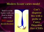 modern fissure caries model36