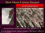 slow onset carious enamel