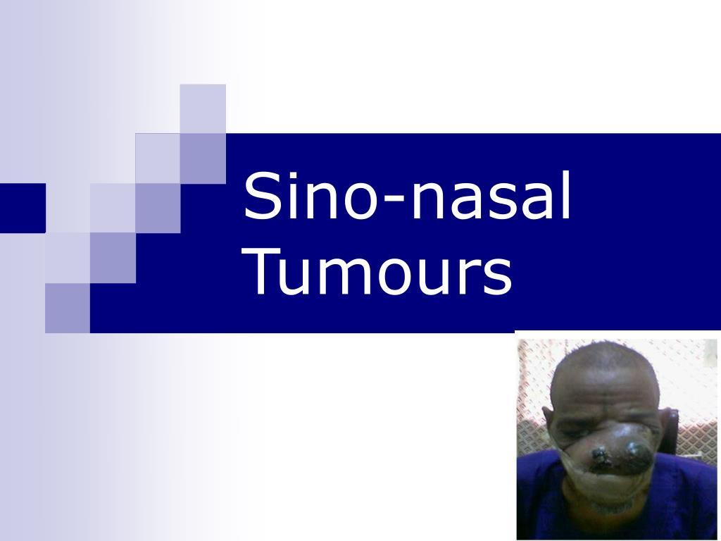 sino nasal tumours l.
