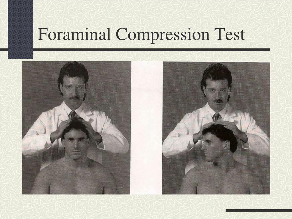 Foraminal Compression Test