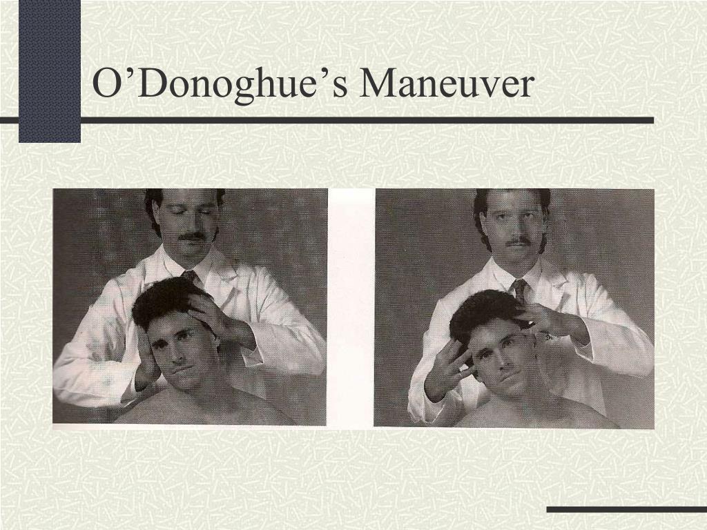 O'Donoghue's Maneuver