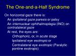 the one and a half syndrome