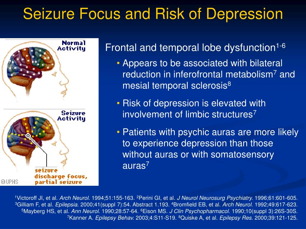 Seizure Focus and Risk of Depression