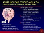acute ischemic stroke ais tia low blood flow to focal area of brain