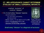 ct mri appearance cannot determine etiology of small cerebral infarcts