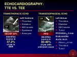 echocardiography tte vs tee