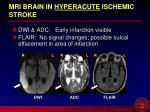 mri brain in hyperacute ischemic stroke