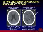 stroke emergency brain imaging noncontrast ct scan
