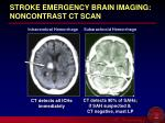stroke emergency brain imaging noncontrast ct scan11