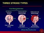 three stroke types