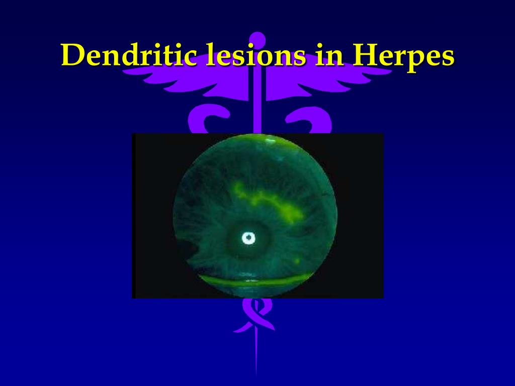 Dendritic lesions in Herpes